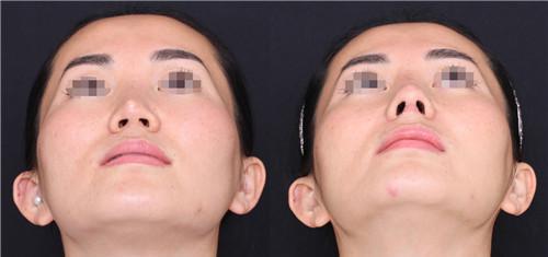 隆鼻整形手术的后遗症