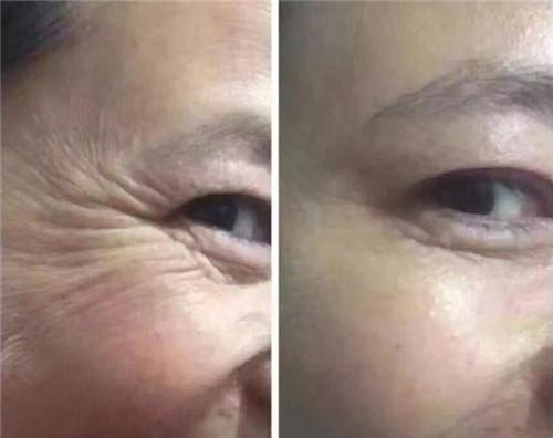 爱贝芙去除眼角皱纹效果如何