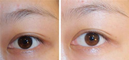 北京注射玻尿酸去除眼角皱纹效果好不好