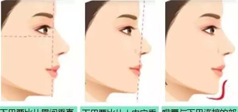 怎样避免下巴整形成锥子脸