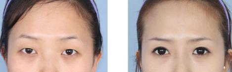 割双眼皮的过程是怎样的