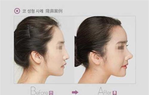 韩式假体隆鼻价钱一般是多少