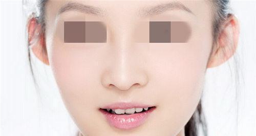 硅胶隆鼻都有哪些后遗症