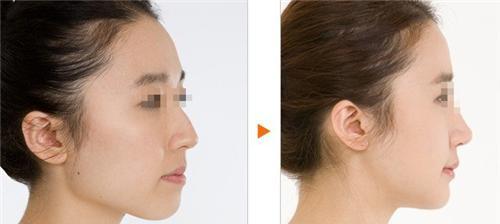 脸部自体脂肪植入的一些注意事情