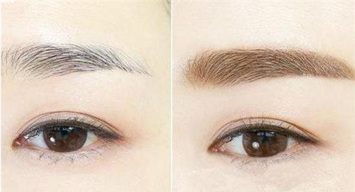 双眉种植术的消费基准是需要多少
