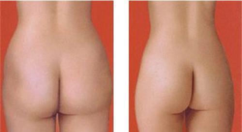 告诉各位爱美人士究竟如何瘦臀最迅速最有效?