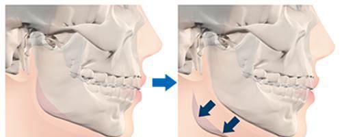 适合于下颌骨整形手术的人士有