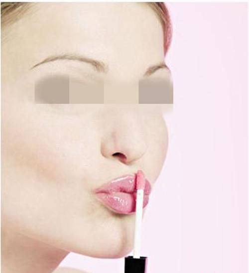 做一回继发兔唇治疗一般情况下需要花好多人民币