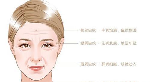 果酸焕肤可以除去黑头吗