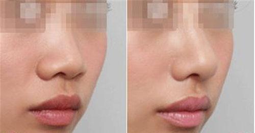 自己注射玻尿酸隆鼻_玻尿酸注射假体隆鼻后多长时间能够康复 - 20Young医美科普_问答社区