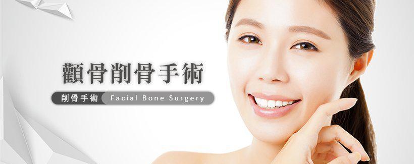 颧骨削骨手术