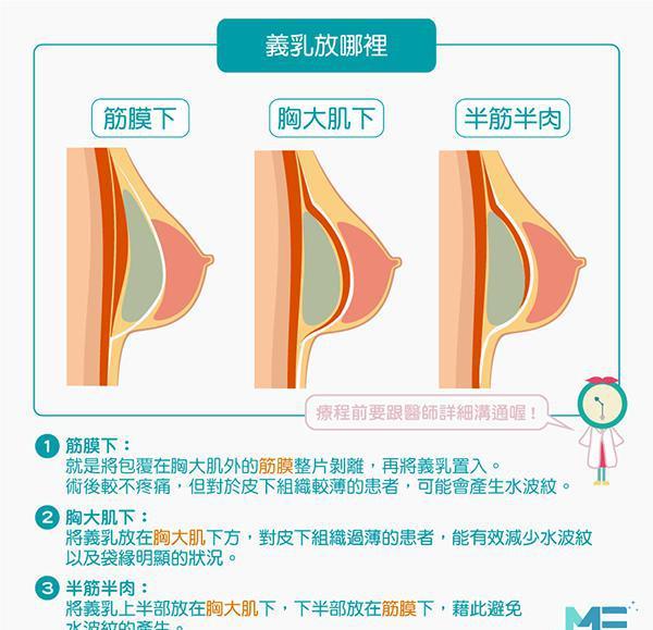 隆乳位置、隆乳种类