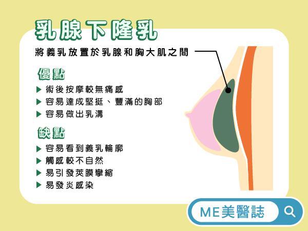 乳腺下隆乳