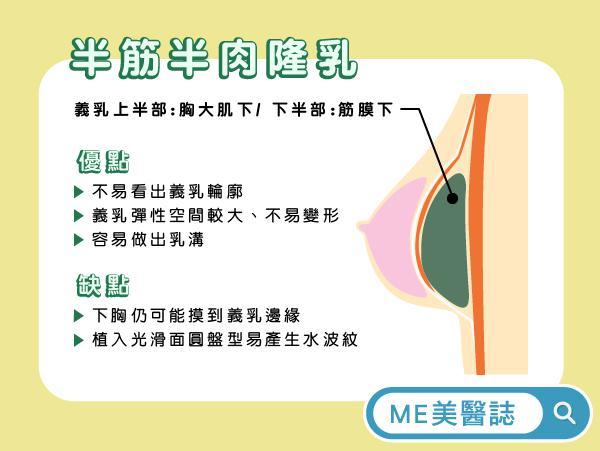 复合式隆乳