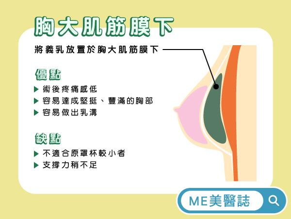胸大肌筋膜下