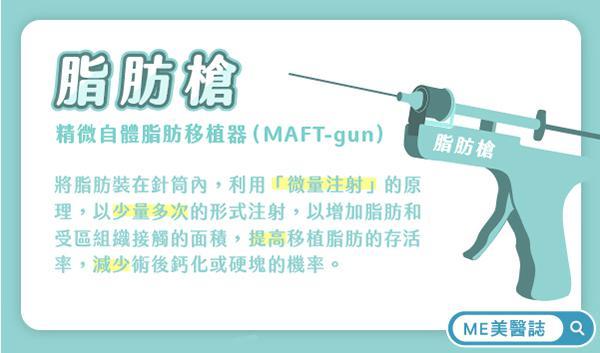 精微自体脂肪移植器(MAFT-gun)