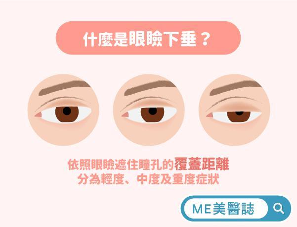 什么是眼睑下垂?