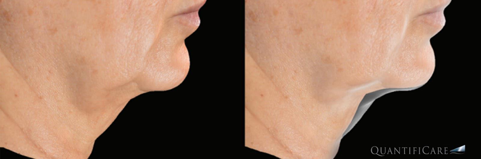 3d照相机医美纪录案例照玻尿酸肉毒隆乳手术魔滴模拟抽脂手术模拟