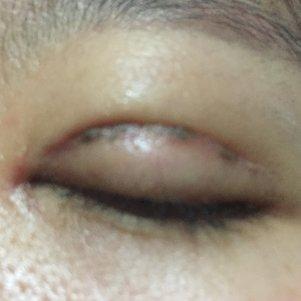 双眼皮全切去皮去脂,有些血痂一样的黑色的痕迹在切口处,怎么办呢?
