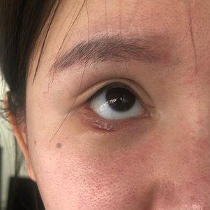 外切眼下至术后四十天右眼疤痕凹陷,可以恢复吗?这种疤痕修复有效吗?