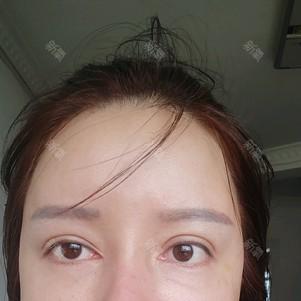 谁能告诉我这眼皮怎么修复……左边能修复跟右边一样吗