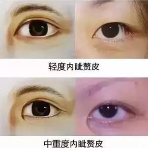 毛晓彤这种程度的内眦赘皮需要开眼角吗?做双眼皮到底要不要开眼角?